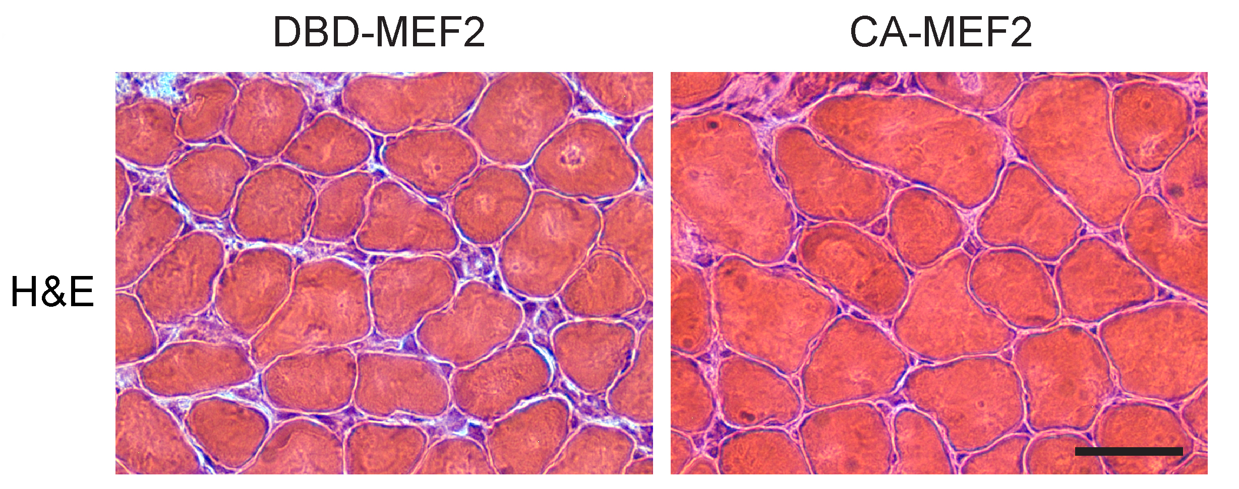 AR113Q limb muscle was examined 7 days after transfection with constitutively actively MEF2 (on right) or inactive MEF2 (on left). Expression of CA-MEF2 caused a significant rescue of muscle fiber size.